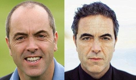 hair Transplant Before n After