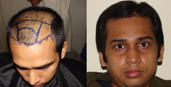 Hair transplant in Peshawar