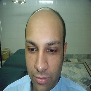 Hair Transplant After