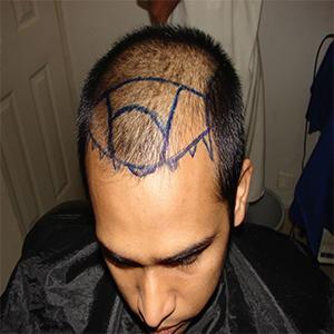 Hair Transplant Before 2