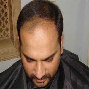 Hair Transplant in Rawalpindi, Islamabad and Pakistan results