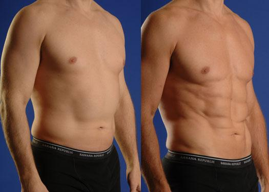 liposuction in Islamabad, Rawalpindi, Peshawar & Pakistan