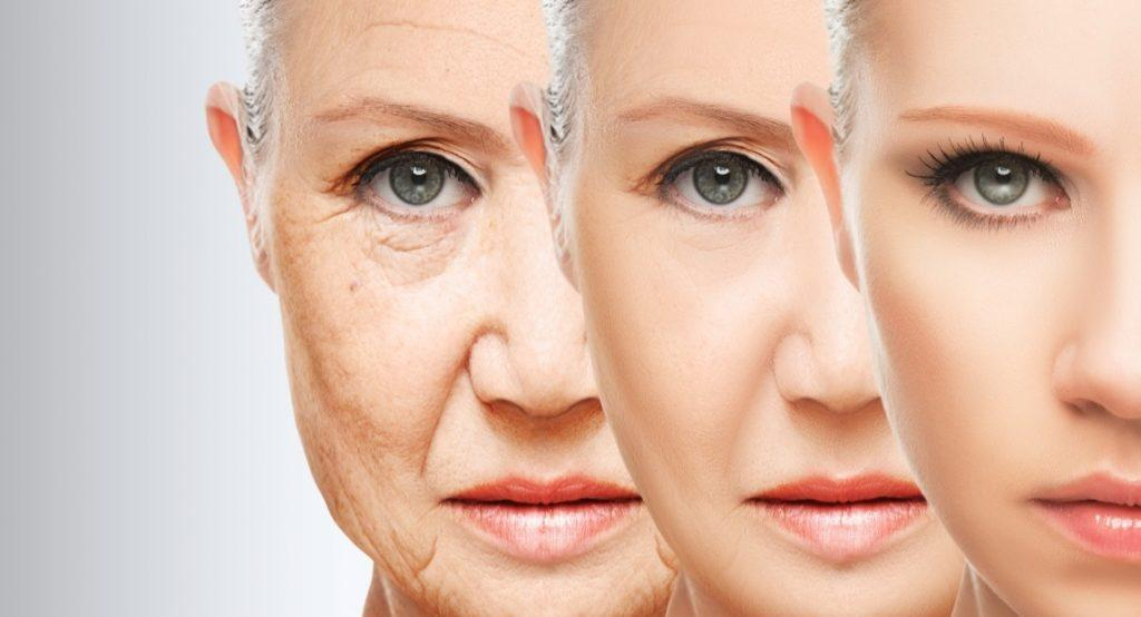 Stem cell facelift in Islamabad, Rawalpindi, Peshawar & Pakistan