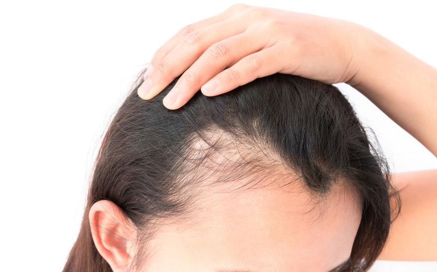 stem cell Hair Transplant in Rawalpindi, Islamabad and Pakistan