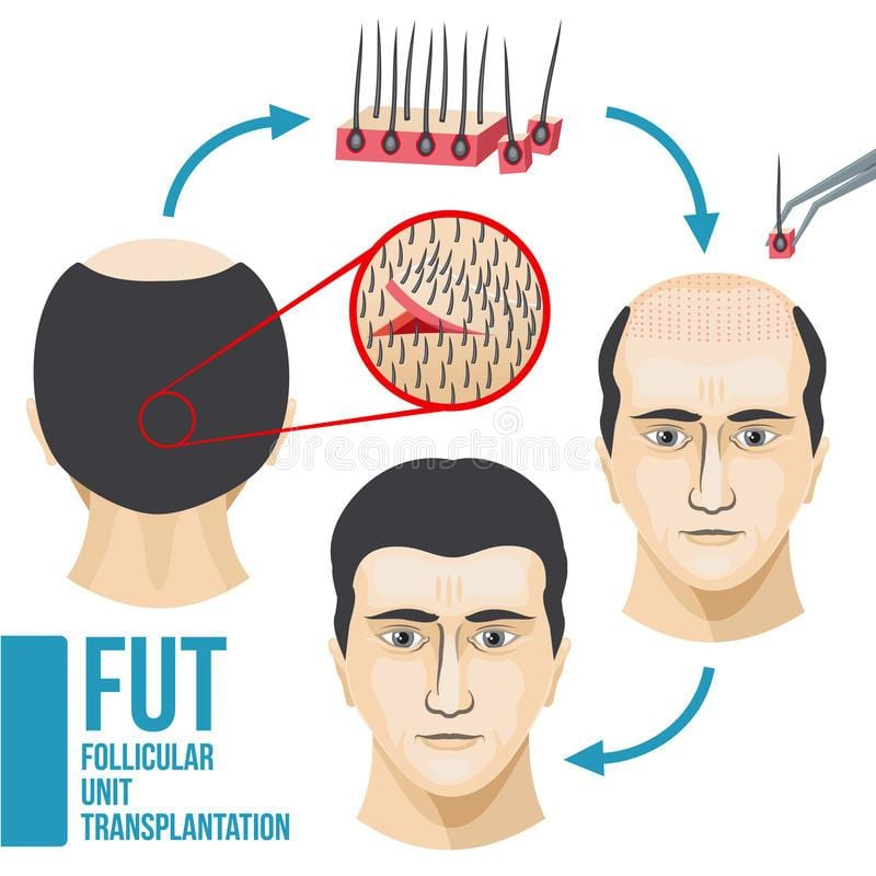 FUT Hair Transplant in Rawalpindi, Islamabad and Pakistan