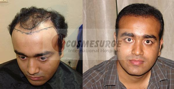 hair transplant in Islamabad